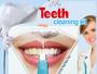 En gros des produits de blanchiment des dents